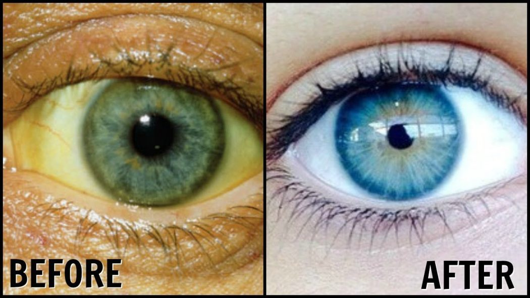 yellowish-eyes Get Whiter Eye Whites with These 7 Exclusive Tips!