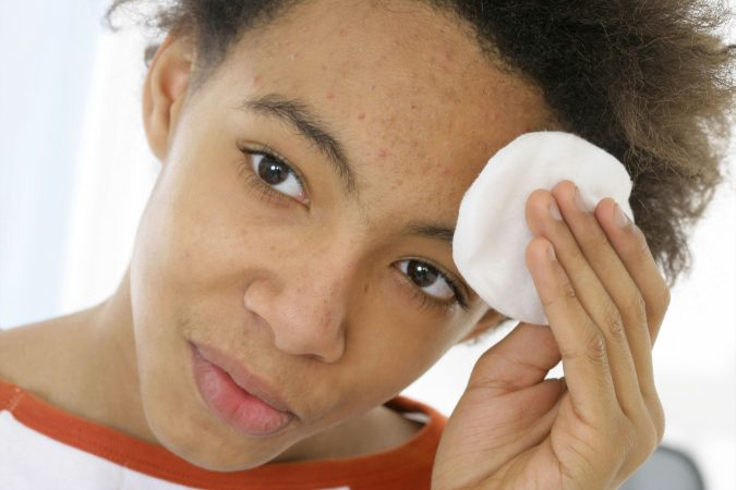 Teen-with-Mild-acne-675x450 9 Face Mapping Acne Spots and What Every Acne Spot Means?