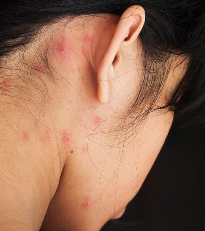 acne-Behind-Ears-675x759 9 Face Mapping Acne Spots and What Every Acne Spot Means?