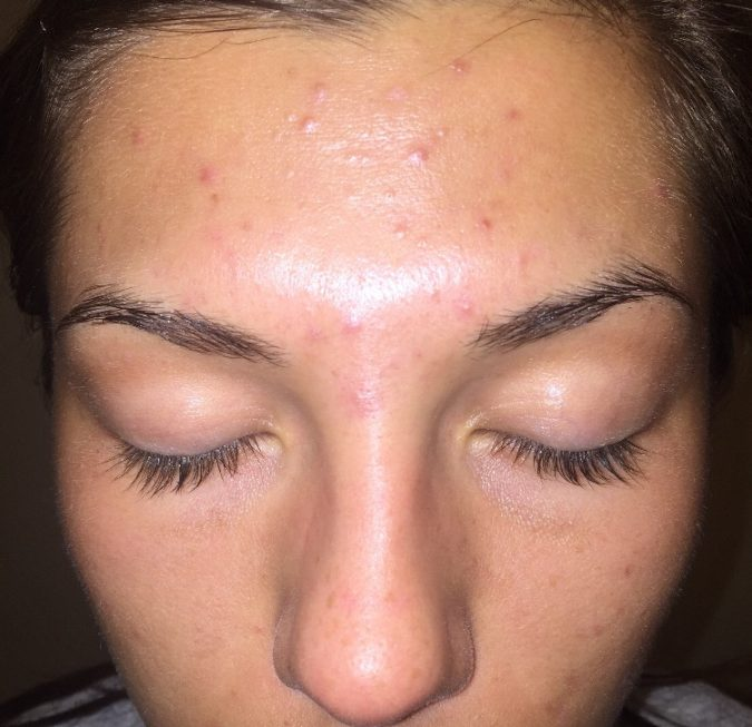 acne-in-the-middle-of-eyebrows-area-675x653 9 Face Mapping Acne Spots and What Every Acne Spot Means?