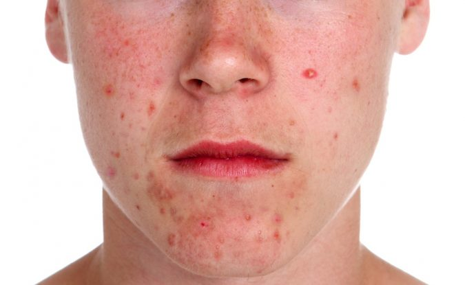 facial-chain-acne-675x415 9 Face Mapping Acne Spots and What Every Acne Spot Means?