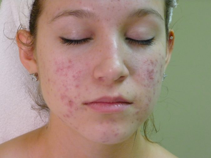 facial-cheek-acne-2-675x506 9 Face Mapping Acne Spots and What Every Acne Spot Means?