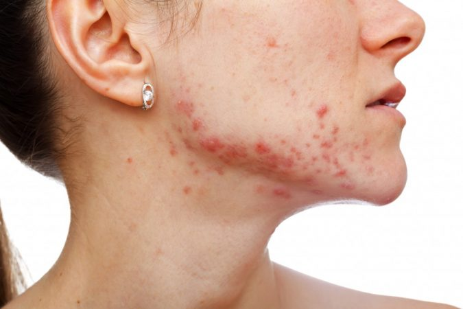 facial-jaw-border-acne-2-675x450 9 Face Mapping Acne Spots and What Every Acne Spot Means?
