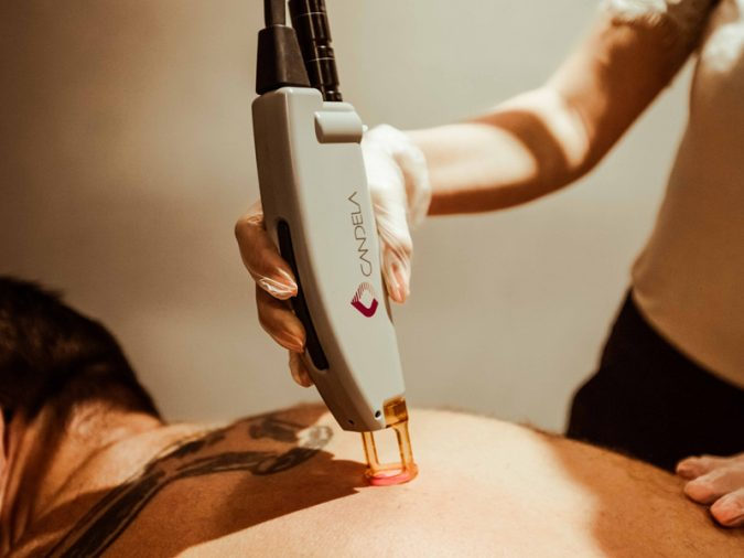 laser-hair-removal-1-675x506 Top 10 Shocking Facts about Laser Hair Removal