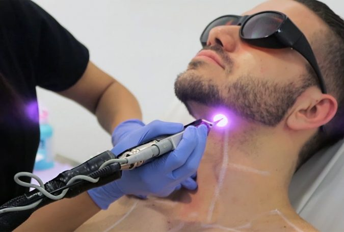 laser-hair-removal-4-675x455 Top 10 Shocking Facts about Laser Hair Removal