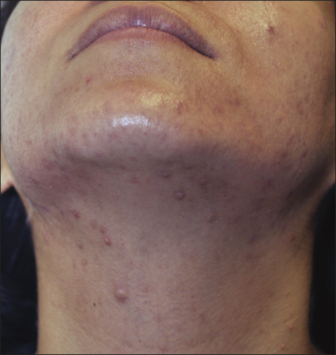 neck-acne-675x713 9 Face Mapping Acne Spots and What Every Acne Spot Means?
