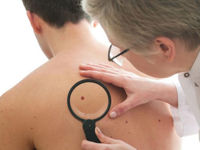 beauty-mark-moles-removal-675x506 Easiest 7 Ways to Get Rid of Beauty Marks