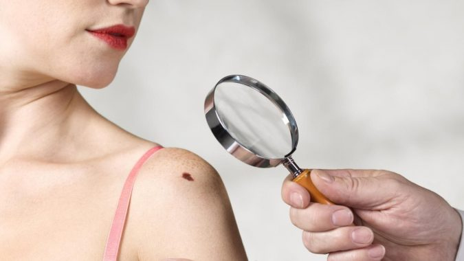 beauty-mark-moles-removed-surgery-675x380 Easiest 7 Ways to Get Rid of Beauty Marks
