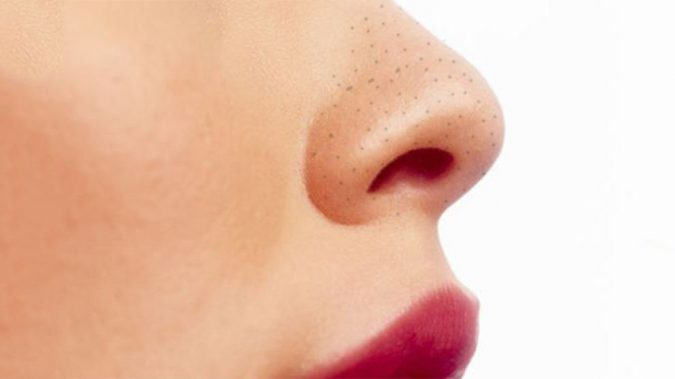 blackhead-removal-675x379 10 Main Steps to Become a Fashion Journalist and Start Your Business