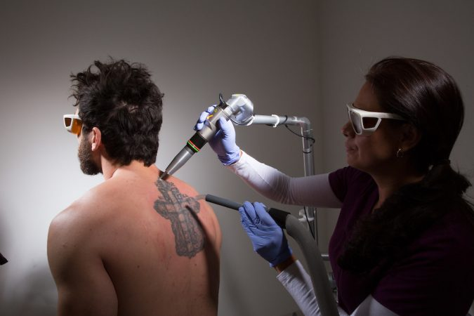 tattoo-removal-with-laser-675x450 8 Easiest Remedies to Remove Skin Tattoo