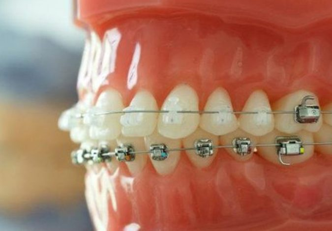 orthodontic-care-675x470 Debunking 7 Common Myths about Orthodontics