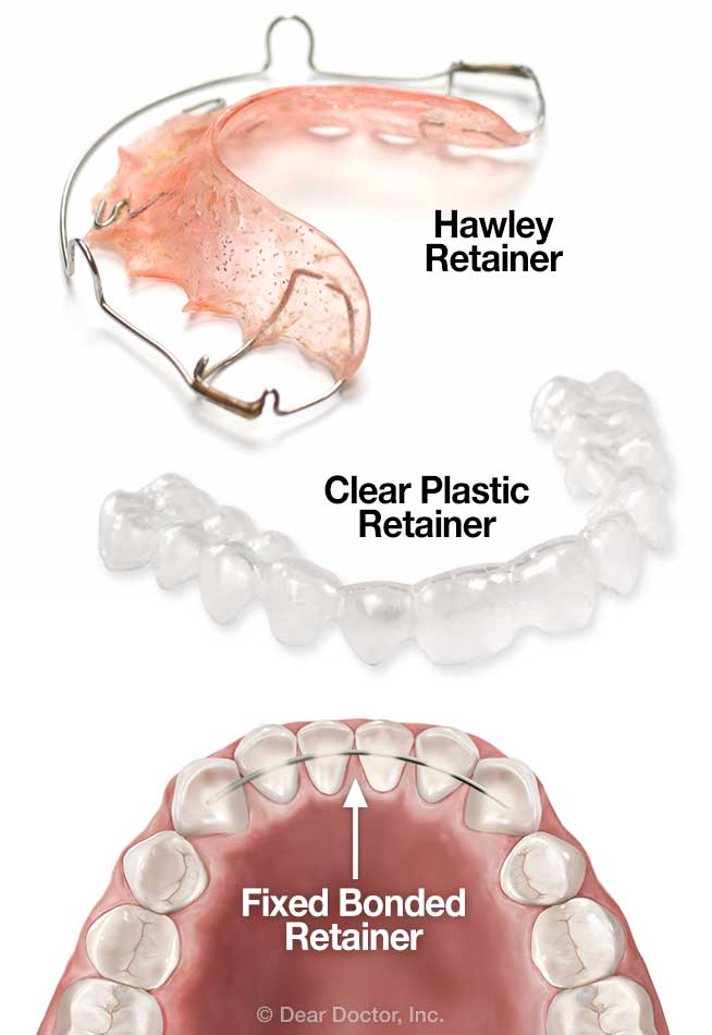 types-of-orthodontic-retainers Debunking 7 Common Myths about Orthodontics