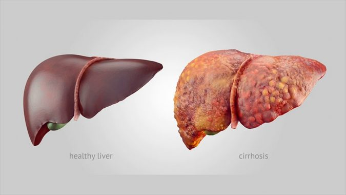 liver-cirrhosis-675x380 Top 10 Food Supplements That Can Ruin the Liver