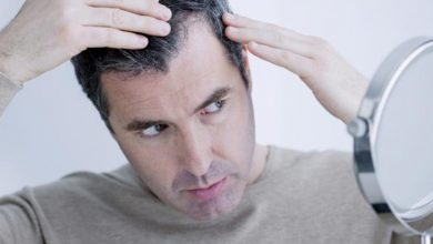 Photo of Available Treatments for The Stressful Issue of Hair Loss