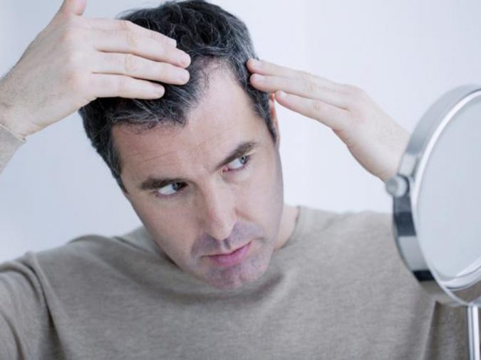 man-looking-at-mirror-675x506 Available Treatments for The Stressful Issue of Hair Loss