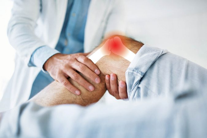 Arthritis-in-Knee-pain-675x450 Top 15 Medical Uses of CBD Oil
