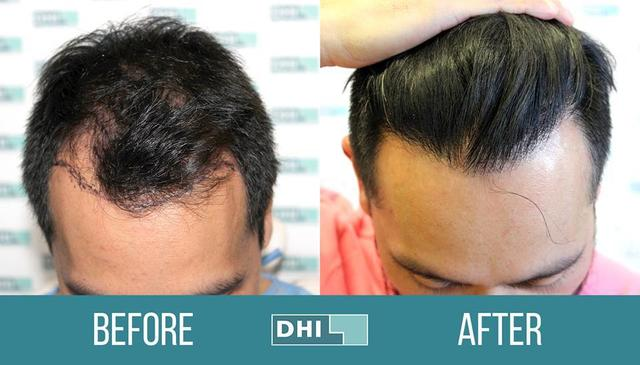 DHI-Medical-Group-hair-transplant-2 Top 10 Hair Transplant Clinics in the UK