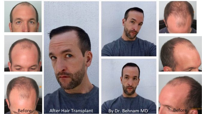 Dermatology-Hair-Restoration-Specialists.-675x381 Top 10 Hair Transplant Clinics in the USA