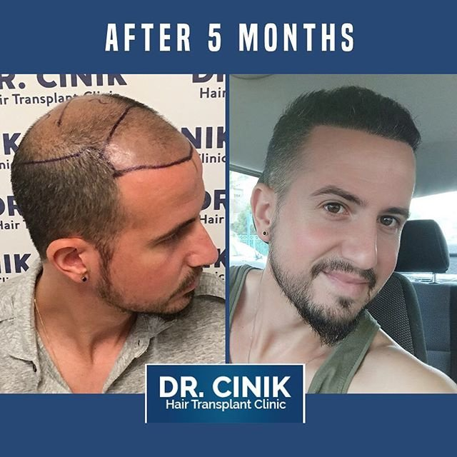 Dr.-CINIK-Hair-hospital-1 Top 10 Best Hair Transplant Clinics in Turkey