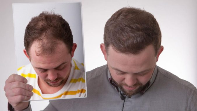 FUE-Clinics-Hair-Transplant-Newcastle-2-675x380 Top 10 Hair Transplant Clinics in the UK