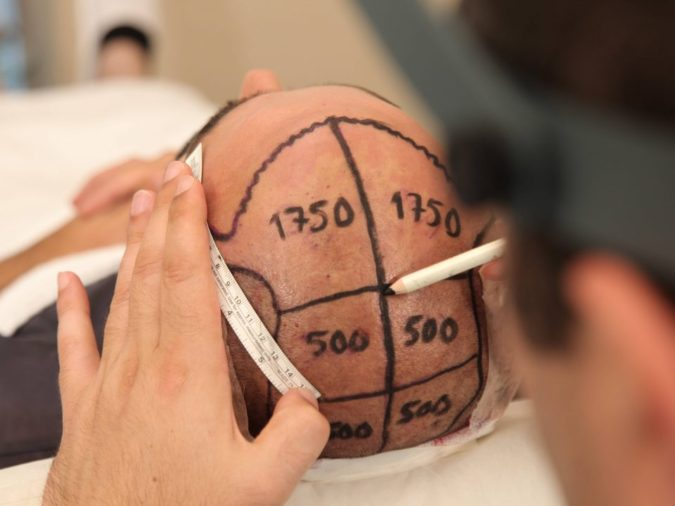 Hair-Transplant-3-675x506 Top 10 Best Hair Transplant Clinics in Turkey