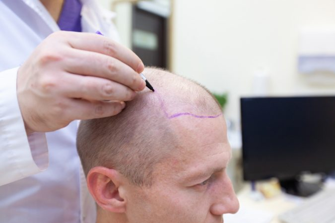 Hair-Transplant-4-675x450 Top 10 Best Hair Transplant Clinics in Turkey