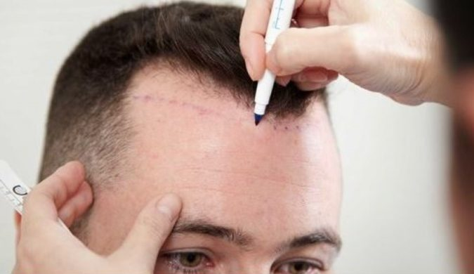 Hair-Transplant.-1-675x390 Top 10 Hair Transplant Clinics in the UK