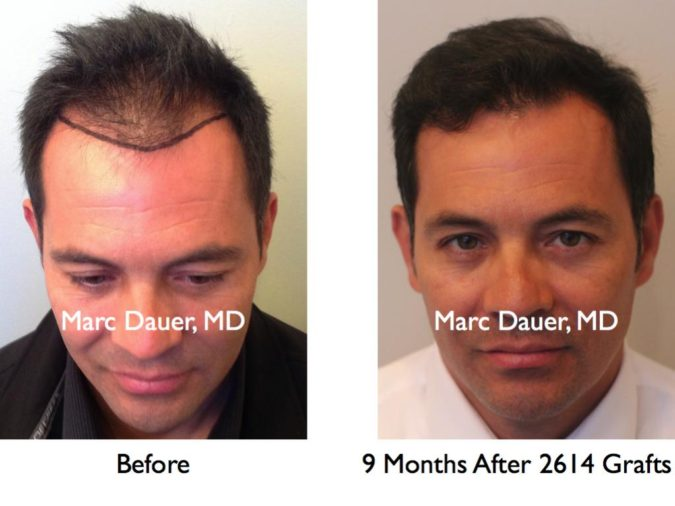 Marc-Dauer-MD-675x506 Top 10 Hair Transplant Clinics in the USA