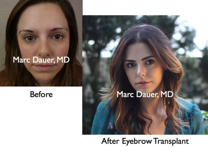 Marc-Dauer-MD.-675x506 Top 10 Hair Transplant Clinics in the USA