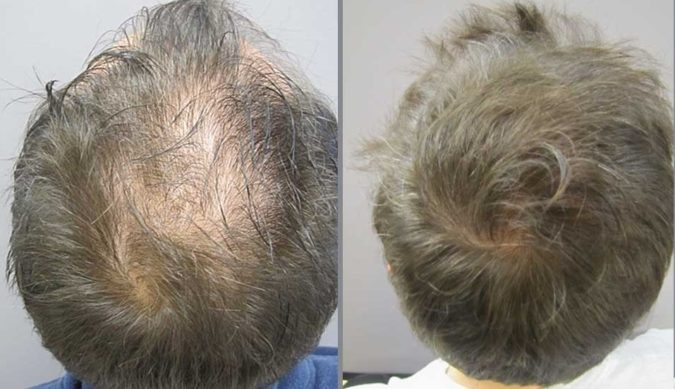 Mollura-Medical-Hair-Restoration-675x389 Top 10 Hair Transplant Clinics in the USA