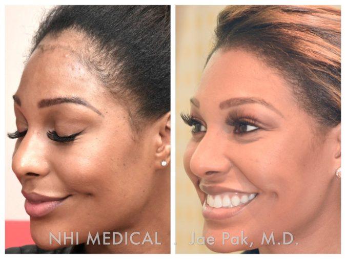 NHI-Medical-Group.-675x506 Top 10 Hair Transplant Clinics in the USA