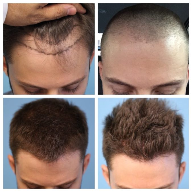 Parsa-Mohebi-Hair-Restoration.-675x675 Top 10 Hair Transplant Clinics in the USA