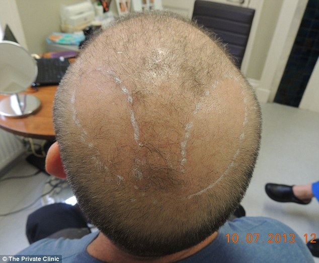 The-Private-Clinic-Hair-Transplant Top 10 Hair Transplant Clinics in the UK