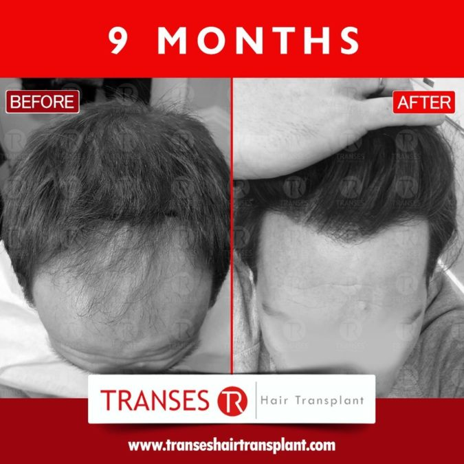 Transes-hair-transplant-center-1-675x675 Top 10 Best Hair Transplant Clinics in Turkey