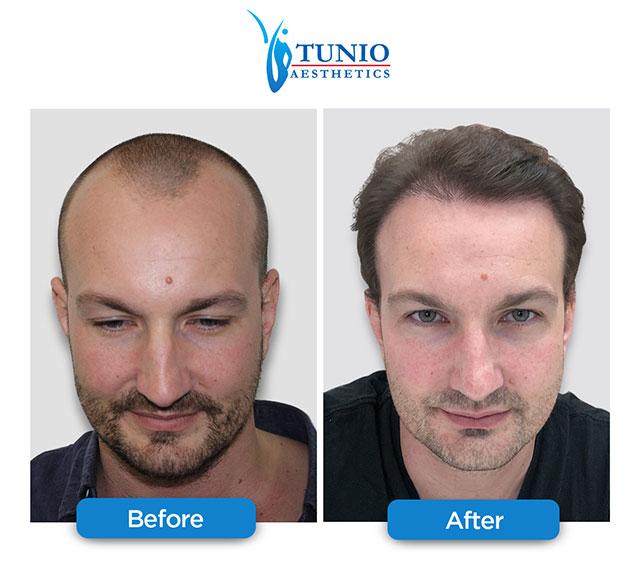 Tunio-Aesthetics-DHCC-hair-transplant Best 10 Hair Transplant Clinics in Dubai