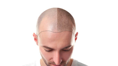 UK-Hair-Transplant-Clinics-390x220 Cognitive Behavioral Therapy Techniques for Developing Your Brain