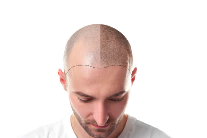 UK-Hair-Transplant-Clinics-675x449 Top 10 Best Hair Transplant Clinics in Turkey