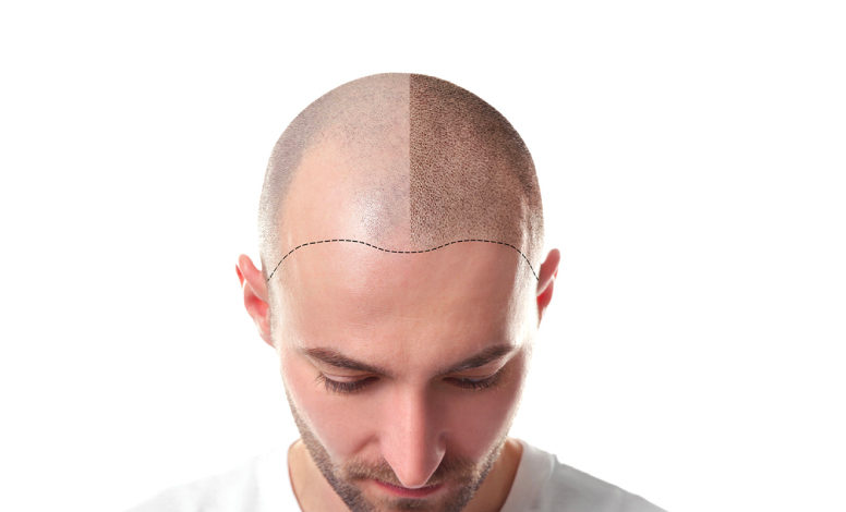 Photo of Top 10 Best Hair Transplant Clinics in Turkey