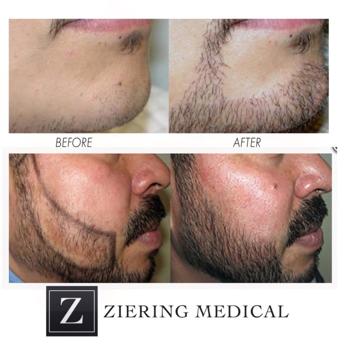 Ziering-Medical-675x675 Top 10 Hair Transplant Clinics in the USA