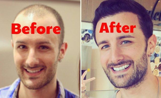 hair-graft.-675x410 Top 10 Hair Transplant Clinics in the USA