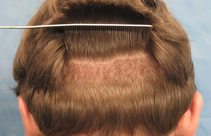 hair-transplant-1-675x437 Best 10 Hair Transplant Clinics in Dubai