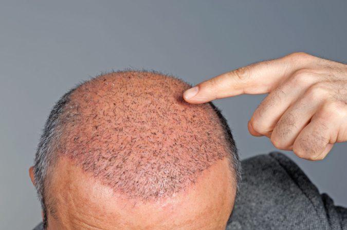 hair-transplant-2-1-675x449 Top 10 Hair Transplant Clinics in the UK