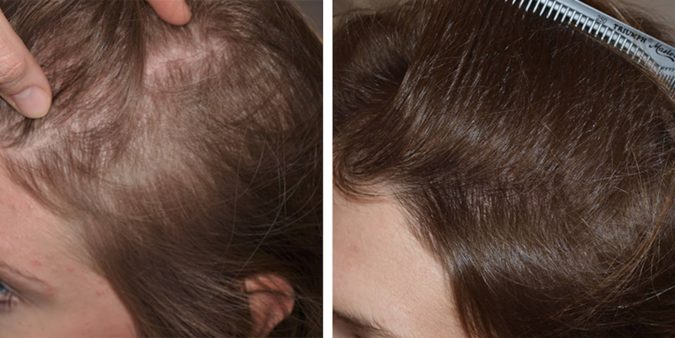 hair-transplant-675x338 Best 10 Hair Transplant Clinics in Dubai