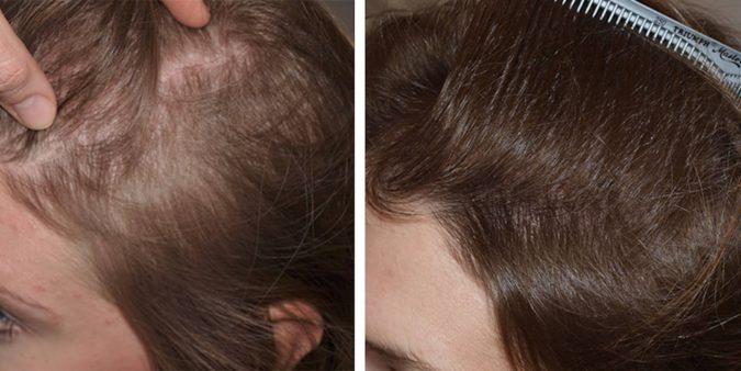 hair-transplant-675x338 Best 10 Hair Transplant Clinics in Dubai