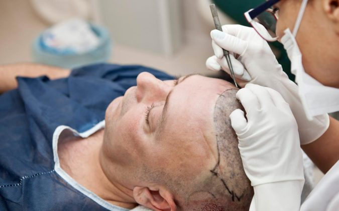 hair-transplant-doctor-2-675x422 Best 10 Hair Transplant Clinics in Dubai