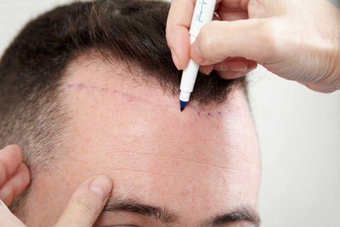 hair-transplant-hairline-675x450 Best 10 Hair Transplant Clinics in Dubai