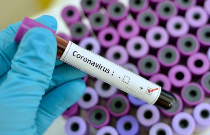 wuhan-china-coronavirus.-675x434 Coronavirus Causes, Symptoms, and Possible Treatments