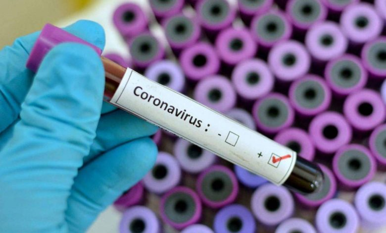 Photo of Coronavirus Causes, Symptoms, and Possible Treatments