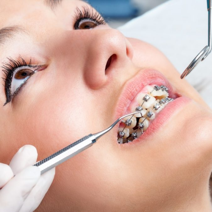 Orthodontics-675x675 3 Types of Cosmetic Dental Procedures That Will Work Wonders for Your Smile