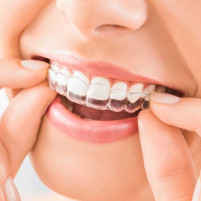 Orthodontics.-675x675 3 Types of Cosmetic Dental Procedures That Will Work Wonders for Your Smile